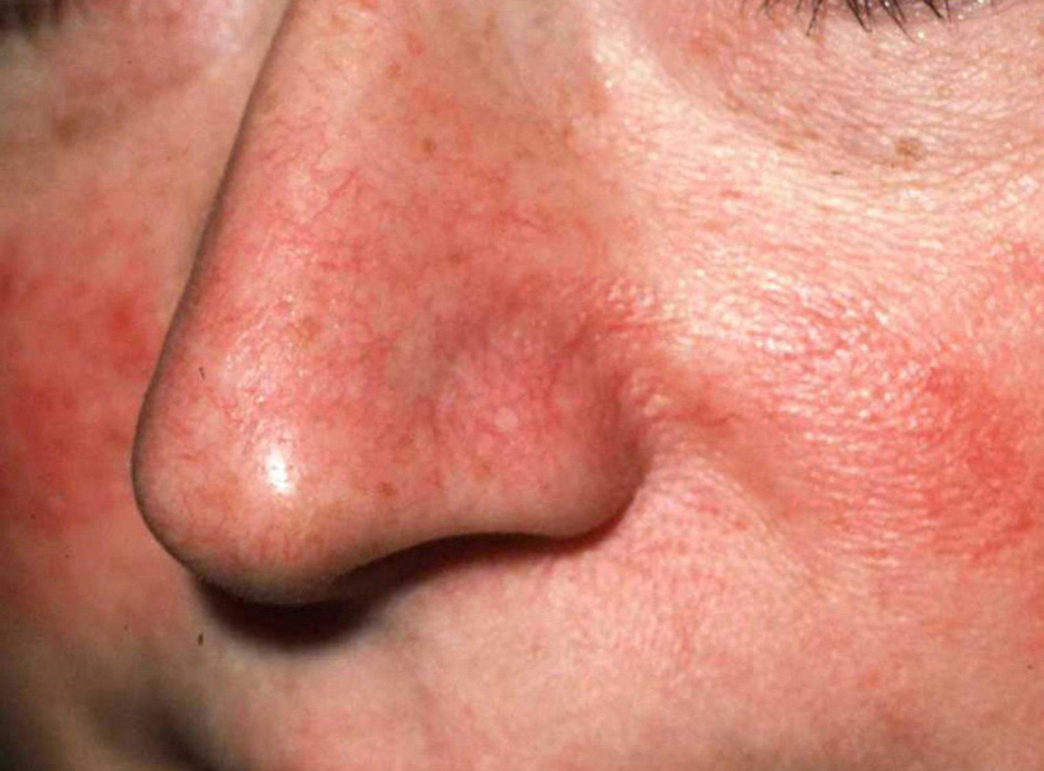 Убрать купероз с лица отзывы 24 фотография