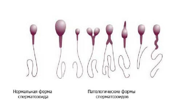 Как повысить подвижность спермиев в домашних условиях