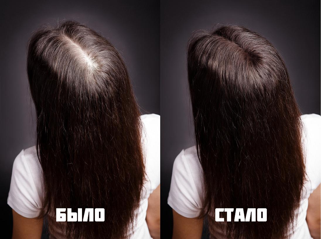 Остановить рост волос в домашних условиях - Sergts.Ru