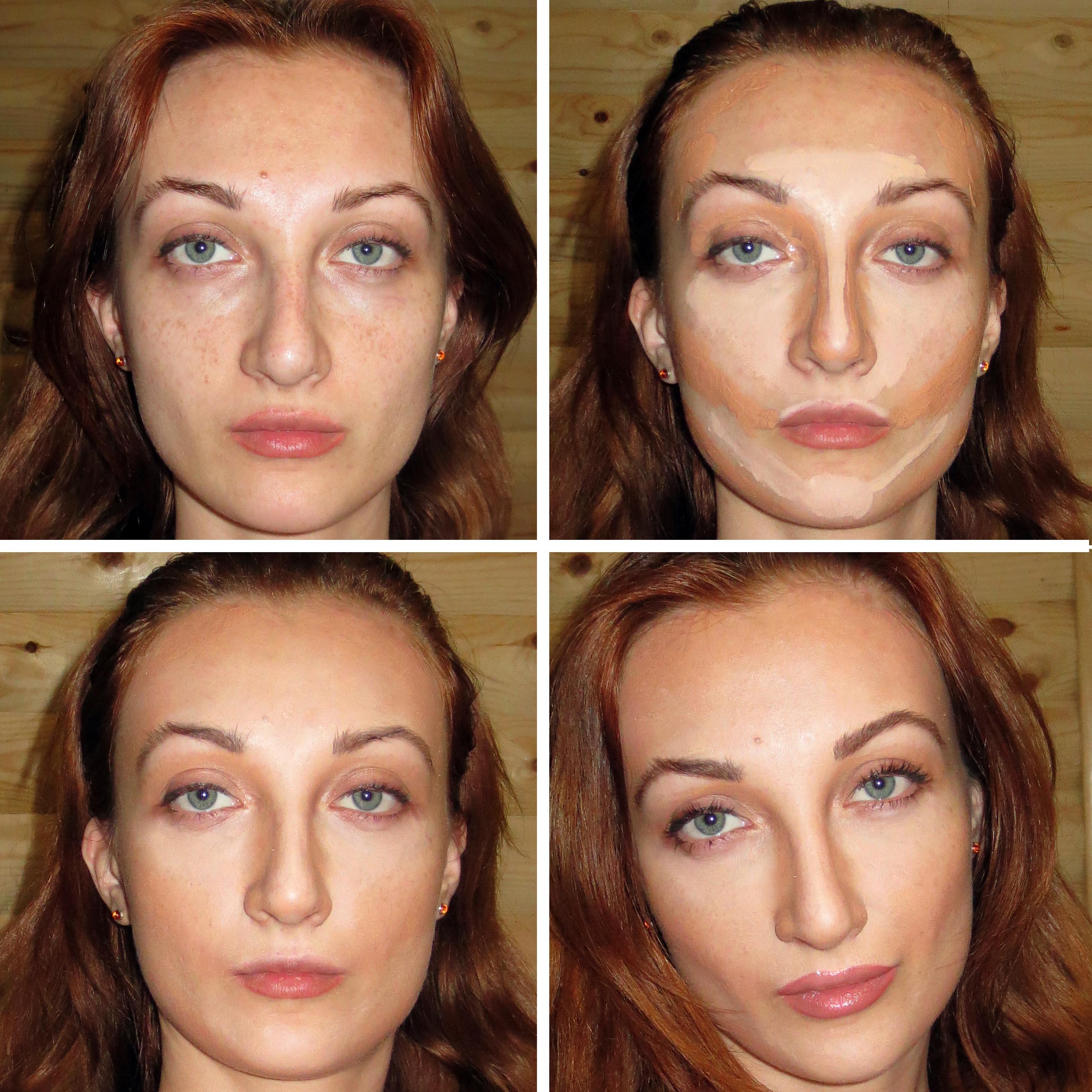 Существуют ли способы сделать нос тоньше без операции? 80