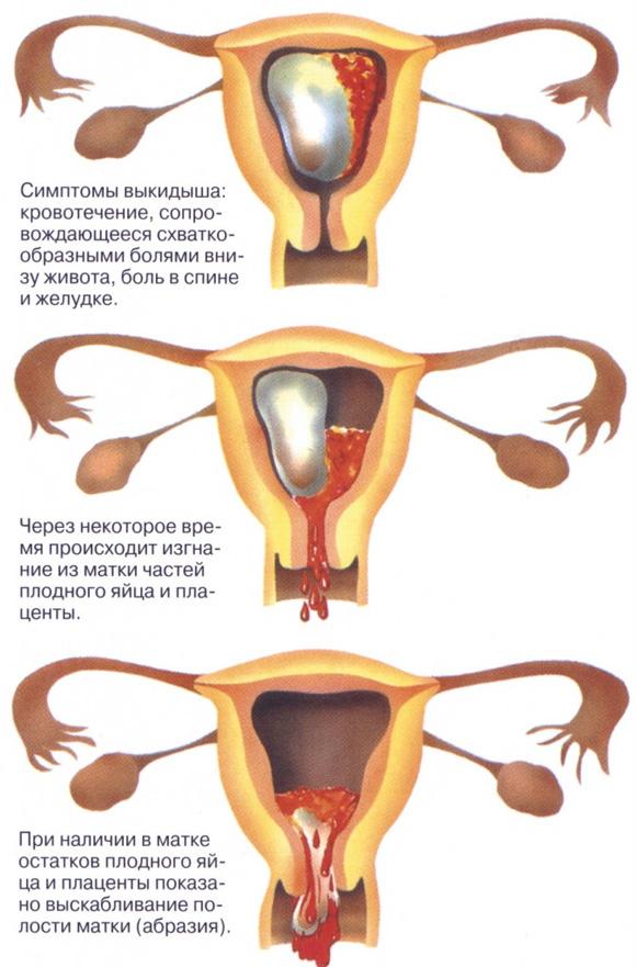 При беременности мало выделяется мочи