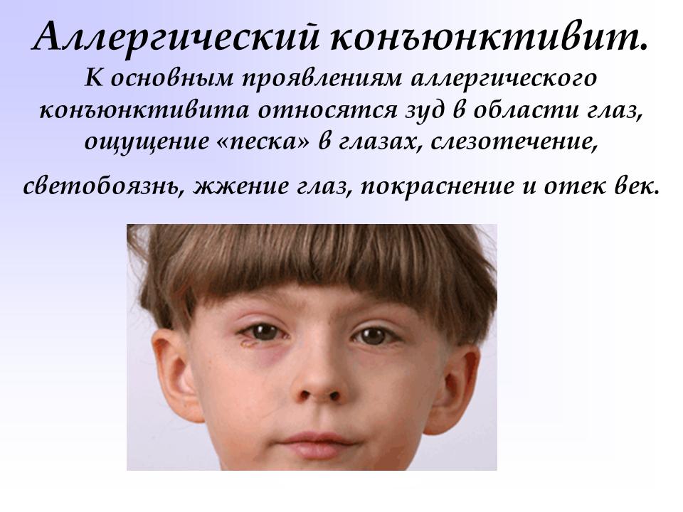 Конъюнктивит Бленнорейный