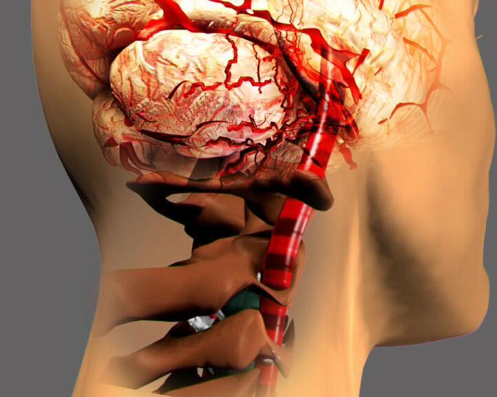 Сужение сосудов головного мозга причины симптомы и
