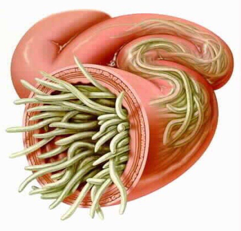 глисты у человека симптомы и последствия