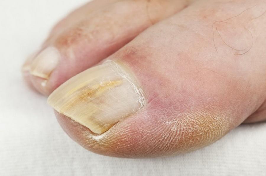 Кто лечил грибок ногтей йодом отзывы