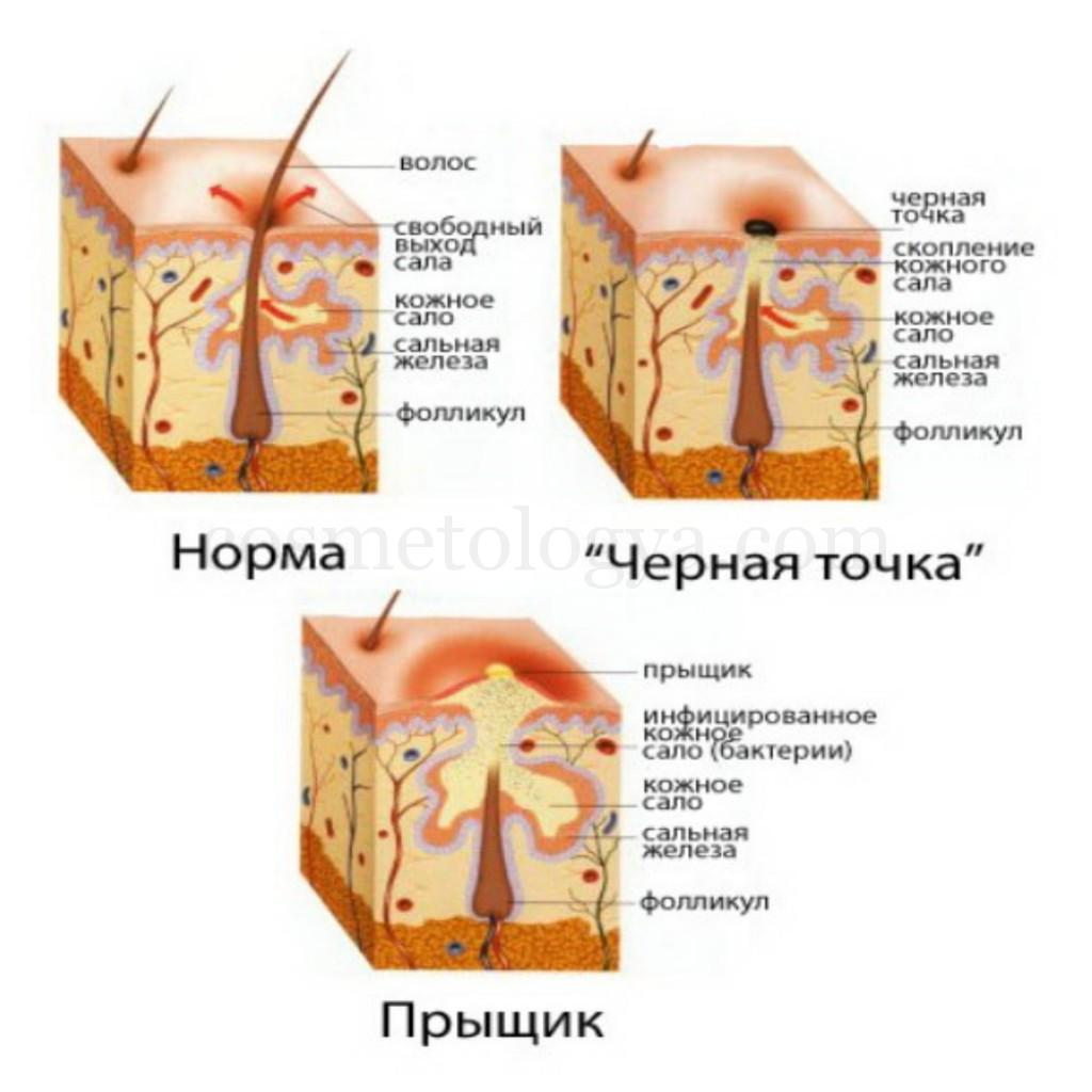 Точки на груди: http://web-rings.ru/page/tochki-na-grudi