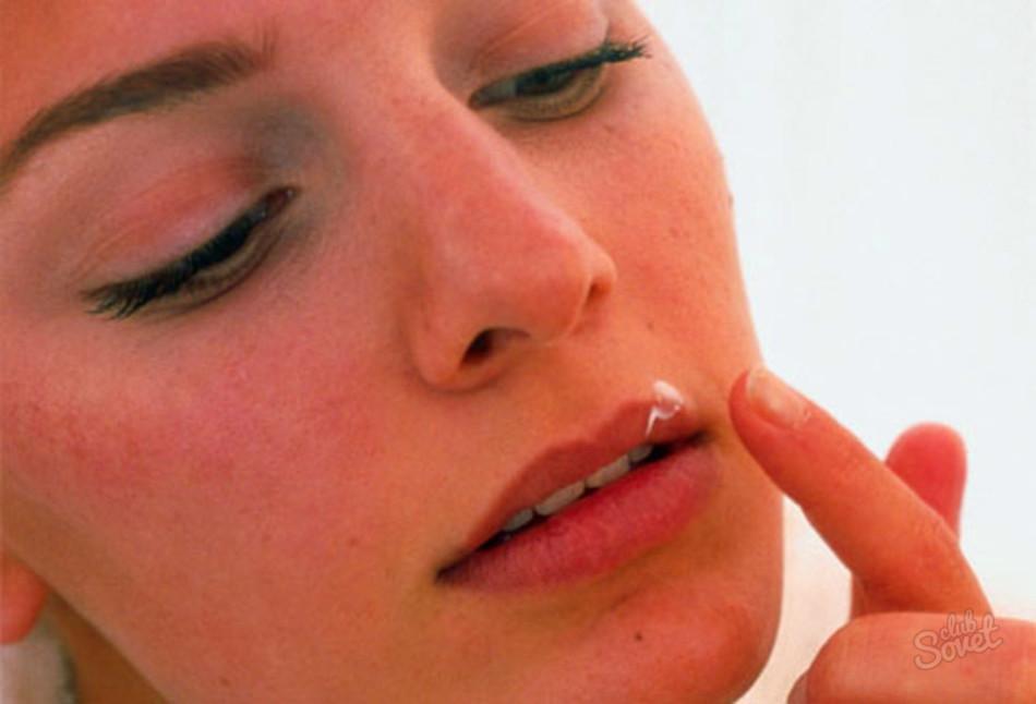 Как лечить ворогушу на губе в домашних условиях