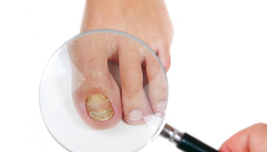 Как и чем быстро вылечить грибок ногтей на ногах