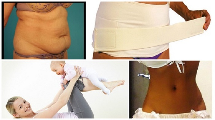 Как убрать живот после родов в домашних условиях за 254