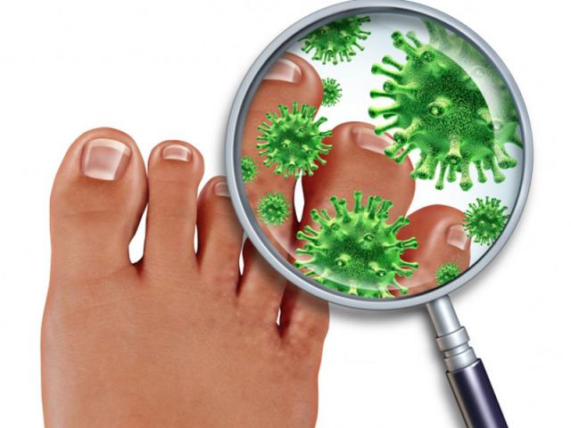 Противогрибковые препараты для ногтей экзодерил