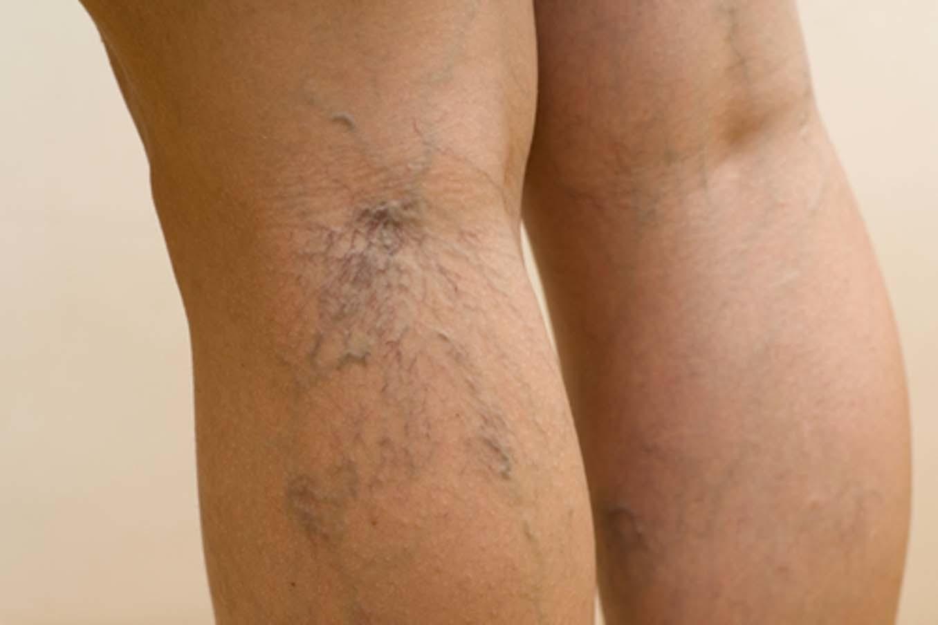сберегающее тепло варикоз ног убрать пятна будет работать максимуму