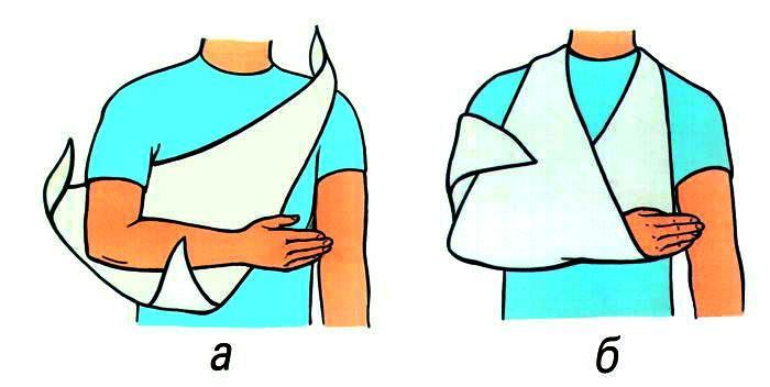 Как сделать косынку при переломе 54