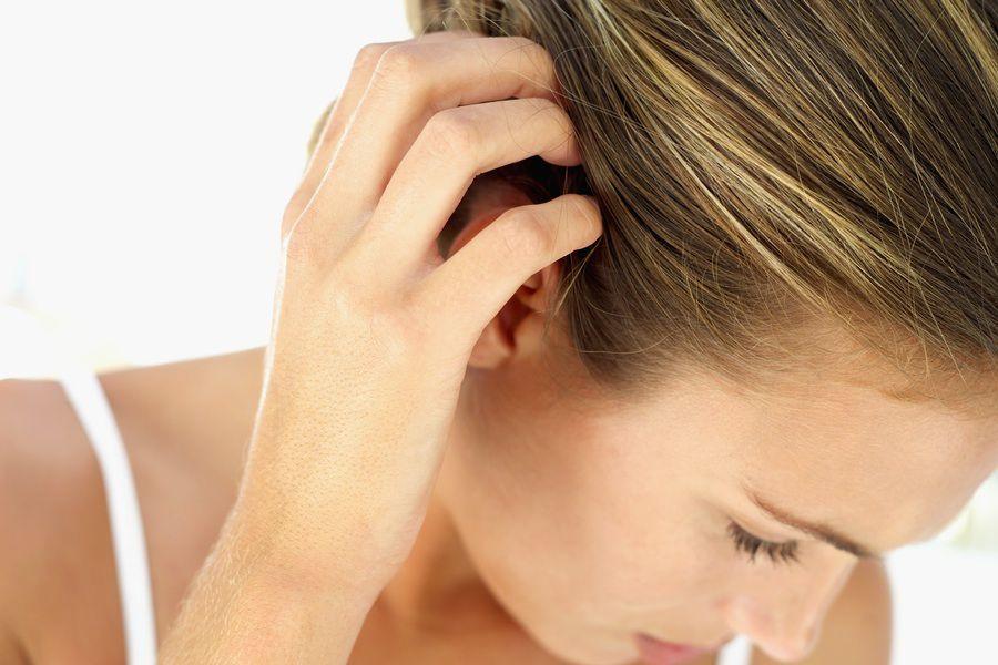 После окрашивания волос голова чешется
