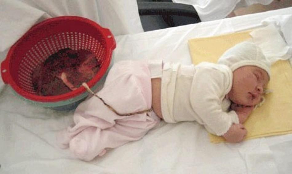 Лотосовые роды: ребенок и плацента. Лотосовое рождение: мнение врачей, отзывы