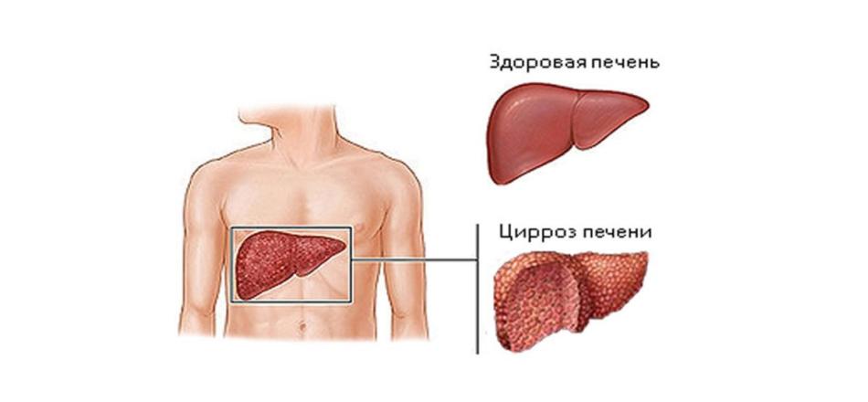 Лечение гепатита с в корее отзывы цена