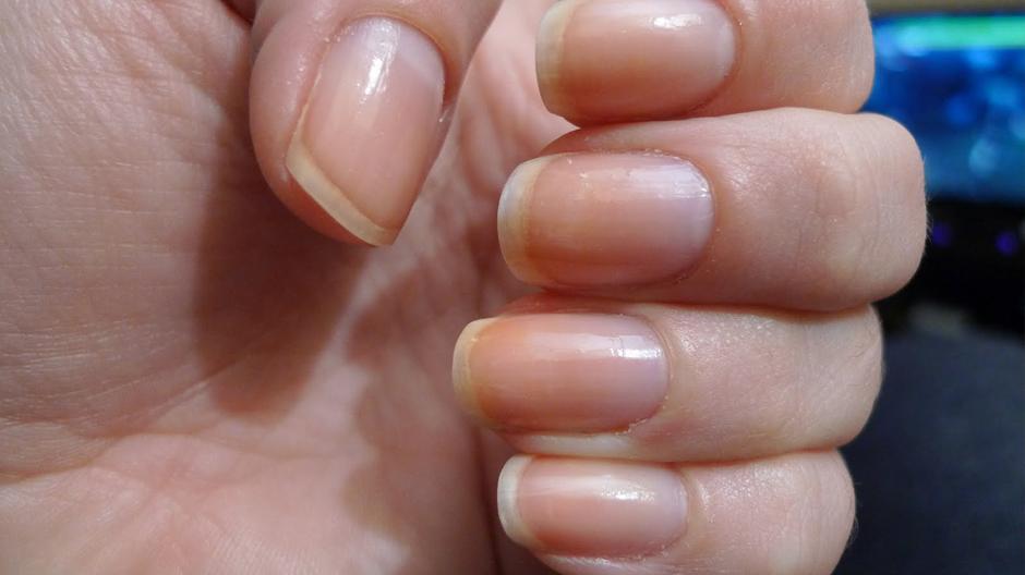 Гигиена при лечении грибка ногтей