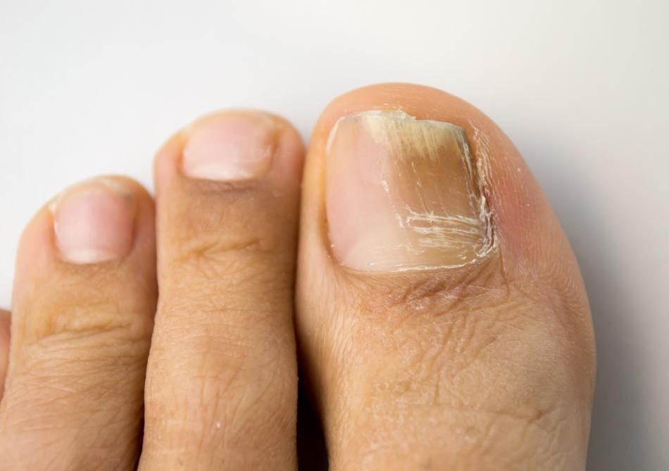 Почему на больших пальцах ног темнеют ногти