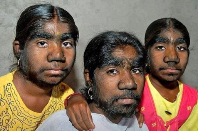 Самые волосатые девушки фото