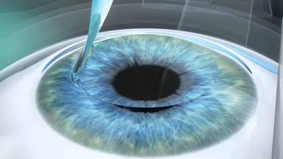 как делают коррекцию зрения