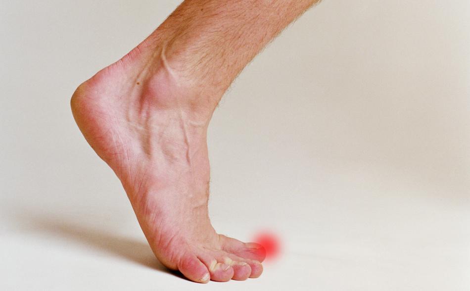 Гноится палец возле ногтя на ноге у ребенка лечение