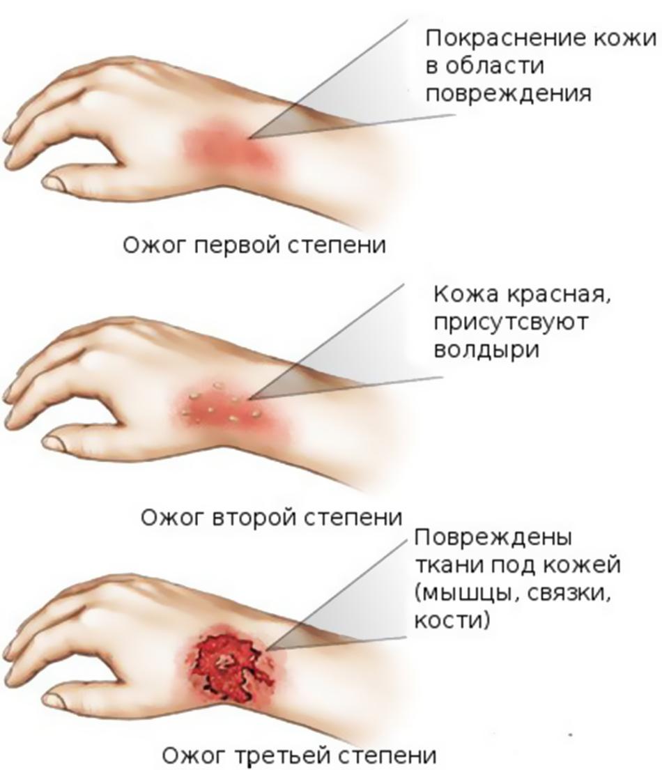 Чем обезболить ожог кожи