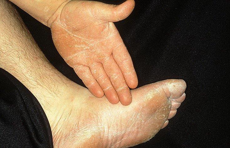 Запущенный грибок между пальцами ног