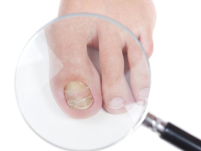 Вылечить лобковый грибок
