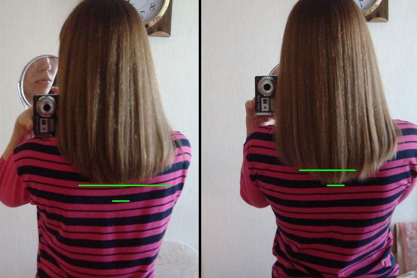 Дарсонваль для роста волос
