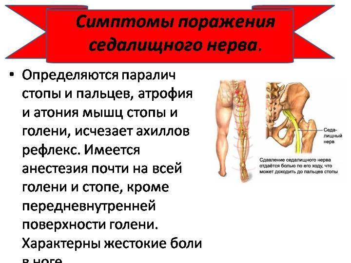 Сидальческий нерв симптомы и лечение в домашних условиях упражнения