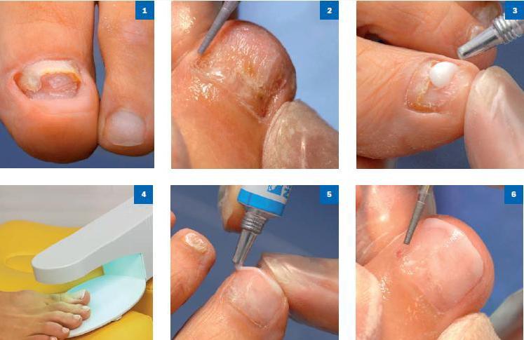 Протезирование ногтя акрилом