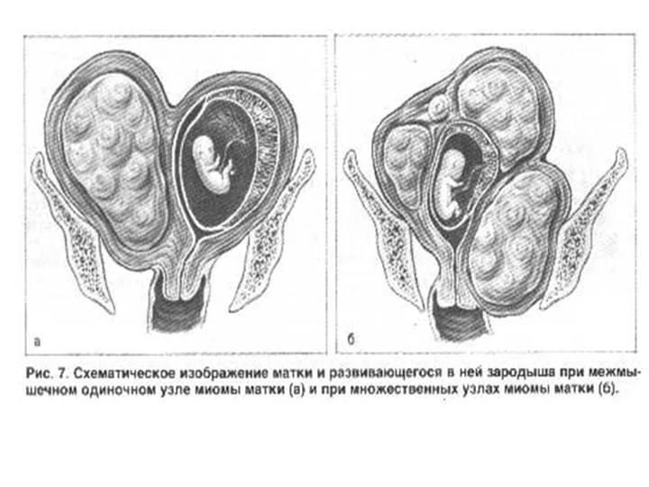 Появилась миома во время беременности