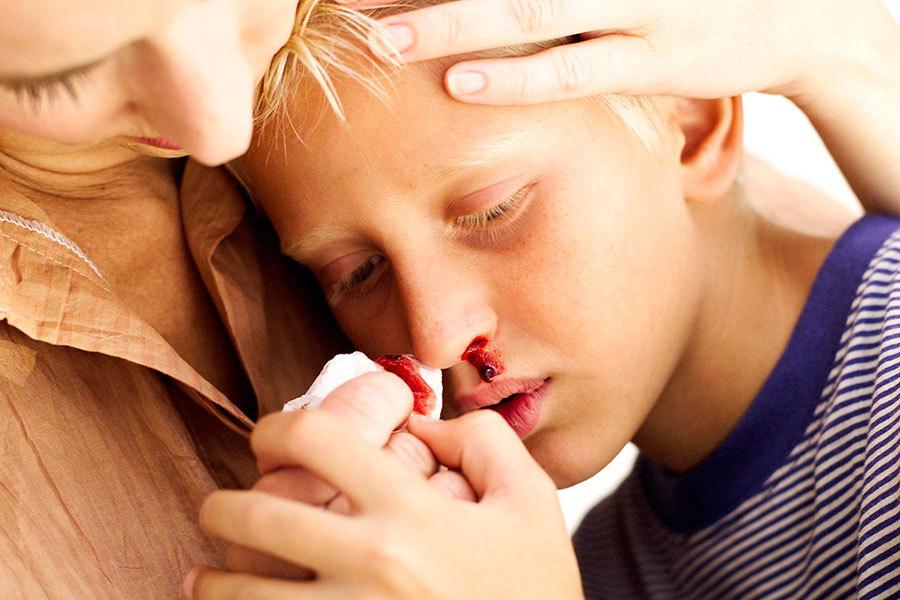 У мальчика пошла кровь носом