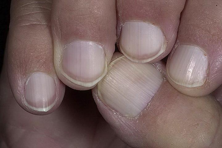 Признаки болезни по ногтям фото