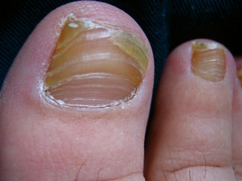 Фото грибка большого пальца ноги