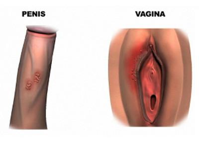 Секс с больным генитальным герпесом