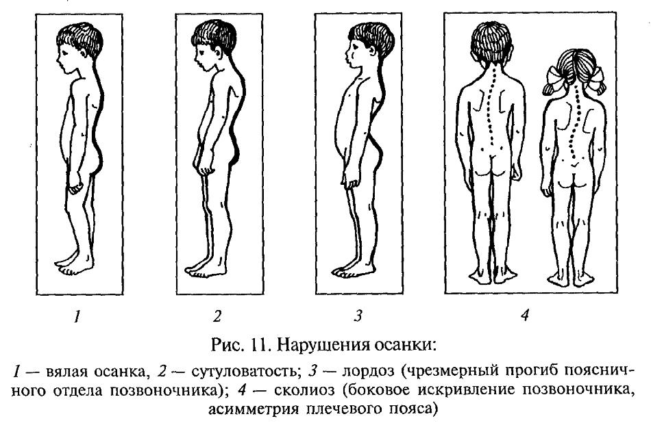 Упражнения от 2 степени сколиоза
