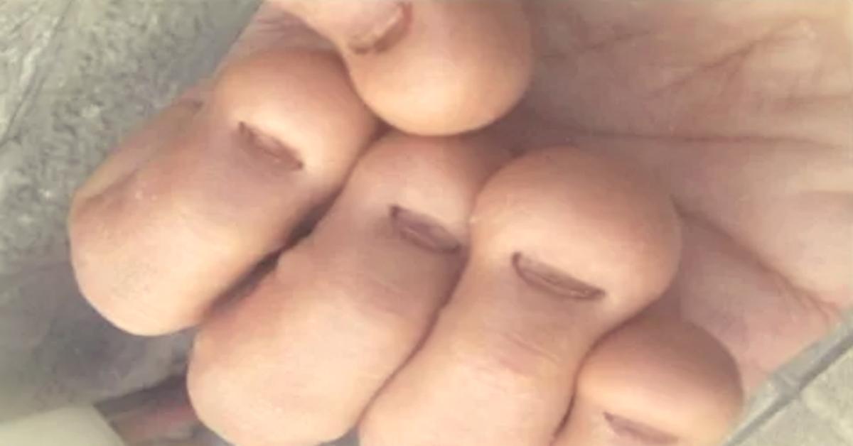 Обгрызанные ногти у детей фото страшные