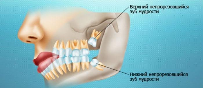 Как быстро обезболить зуб в домашних условиях