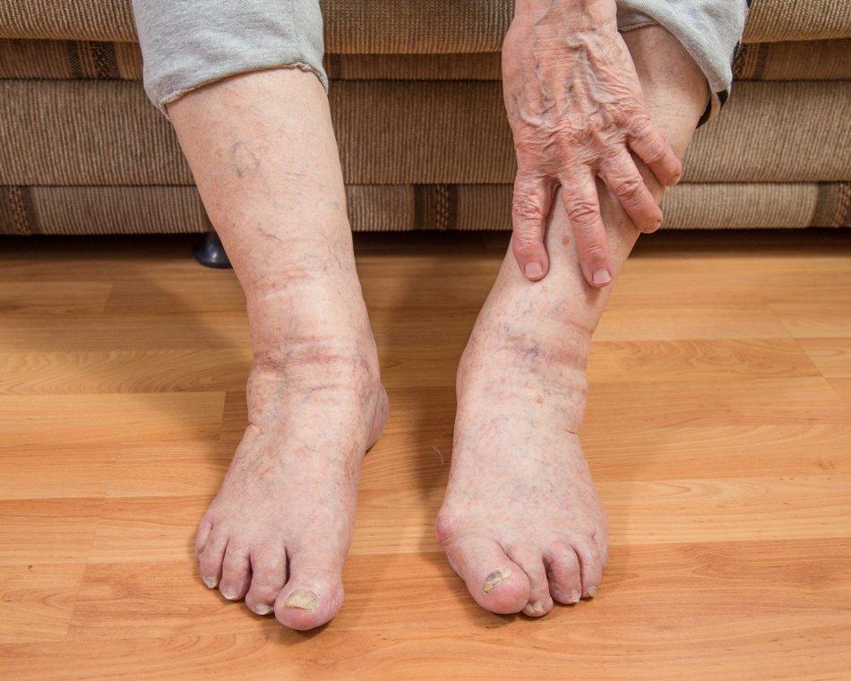 Плохо ходят ноги у стариков что делать