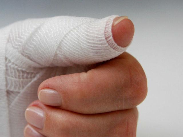Ушиб ногтя на руке что делать