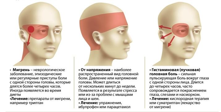 Сильная боль в левом виске и глазу