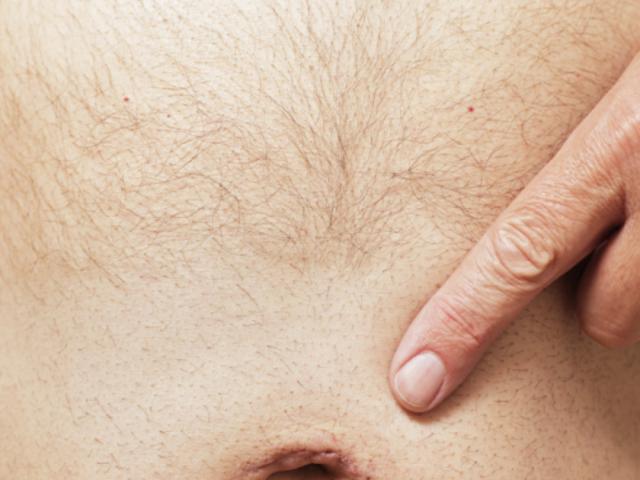 Лечение и заговоры пупочной грыжи