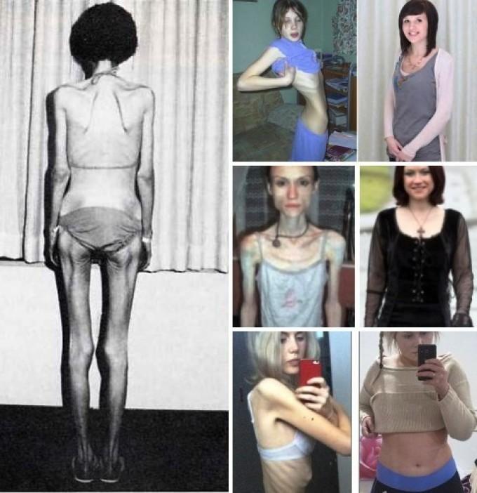 Метод похудения пилигрим анорексия