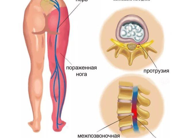 Восстановление нерв в домашних условиях