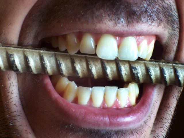 Что значит если во сне зубами скрипишь