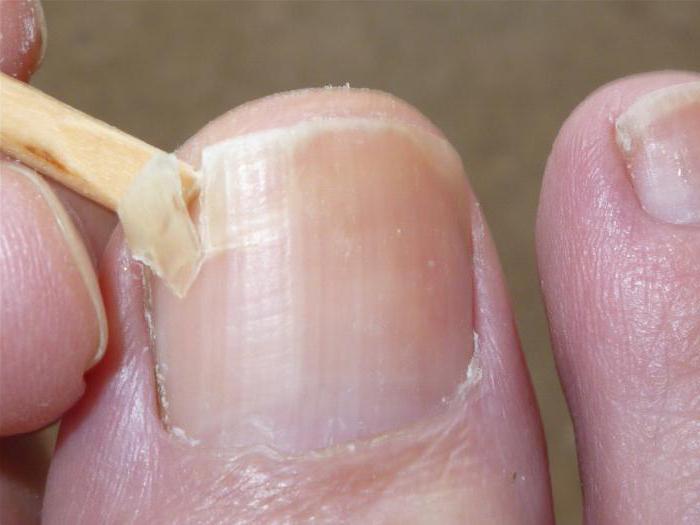 Ноготь отошел от кожи после шеллака
