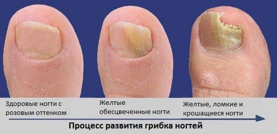 Как вывести грибок на ногтях народными методами