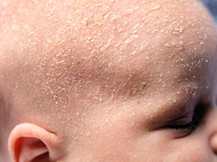 У новорождённого шелушиться кожа на голове