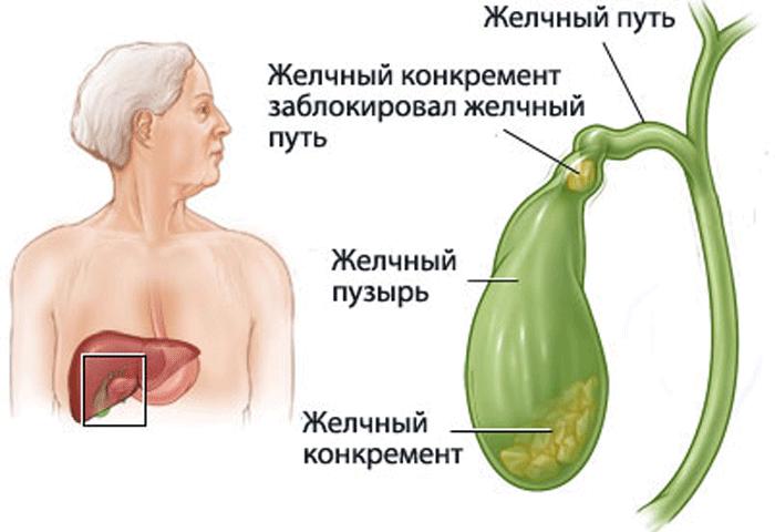 Лечение жёлчного пузыря в домашних условиях народными средствами