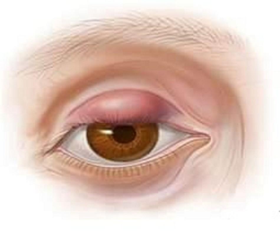 Воспалился глаз: причины, что делать и чем лечить 55